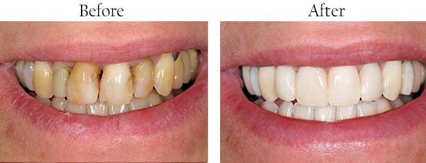 Before and After Teeth Whitening in Redding