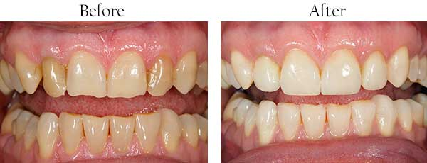 Before and After Invisalign in Redding